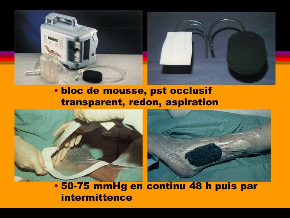 bloc de mousse, pst occlusif transparent, redon, aspiration 50-75 mmHg en continu 48 h puis par intermittence