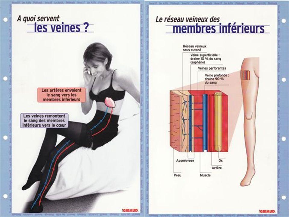 Physiopathologie de lUJV il est le témoin de léchec ou de la non prise en charge correcte de linsuffisance veineuse et de lhypertension veineuse distale