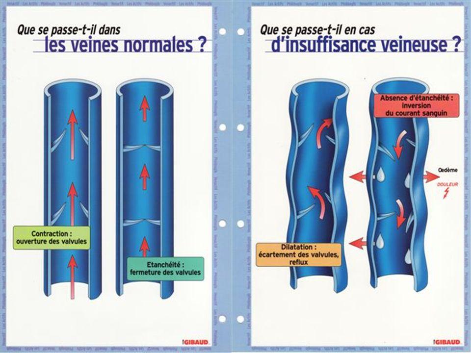 Références http://www.has-sante.fr http://www.ulcere-de-jambe.com