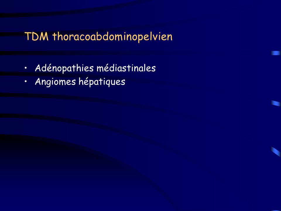 TDM thoracoabdominopelvien Adénopathies médiastinales Angiomes hépatiques