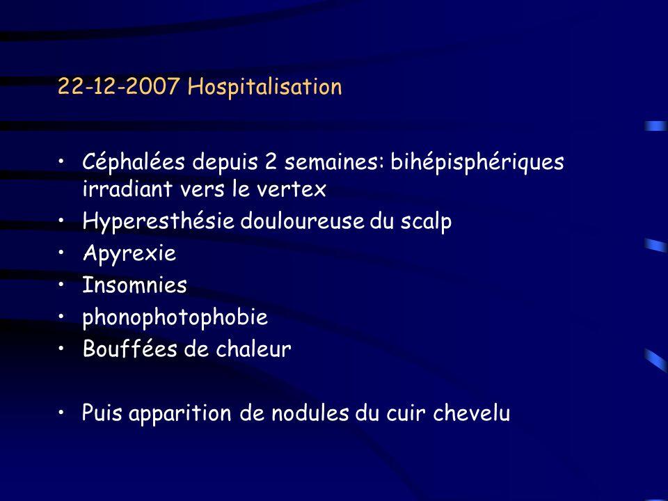 22-12-2007 Hospitalisation Céphalées depuis 2 semaines: bihépisphériques irradiant vers le vertex Hyperesthésie douloureuse du scalp Apyrexie Insomnie