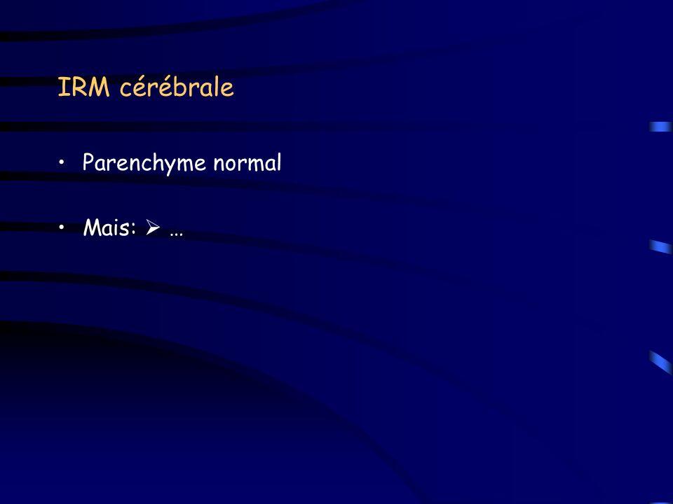 IRM cérébrale Parenchyme normal Mais: …