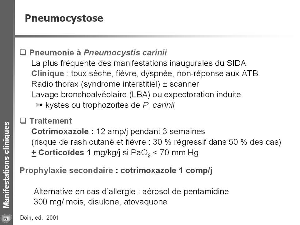 Pneumopathie à Pneumocystis carinii 6