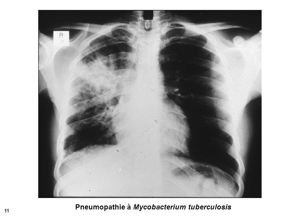 Tuberculose osseuse vertébrale Mal de Pott 12