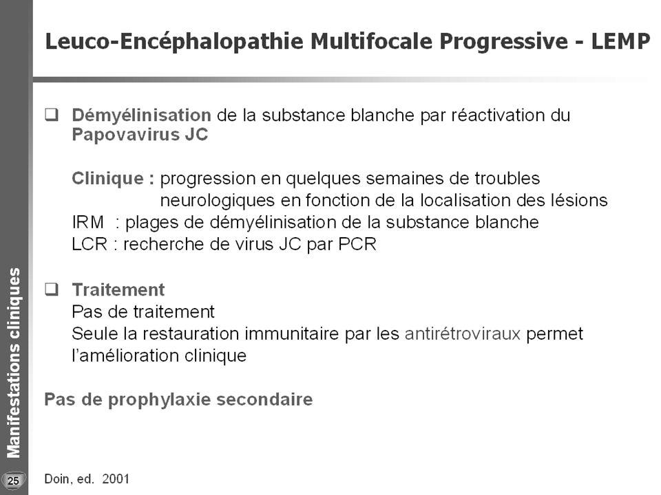 LEMP 26 a et b LEMP typique IRM encéphalique Coupes axiales T2 TSE.