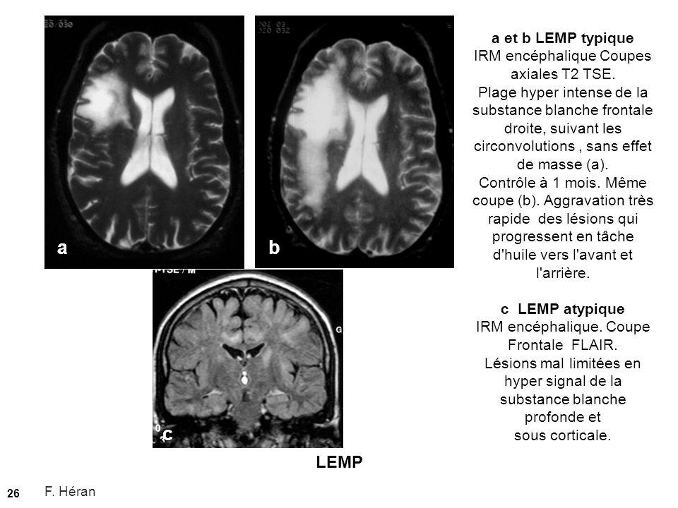 LEMP 26 a et b LEMP typique IRM encéphalique Coupes axiales T2 TSE. Plage hyper intense de la substance blanche frontale droite, suivant les circonvol