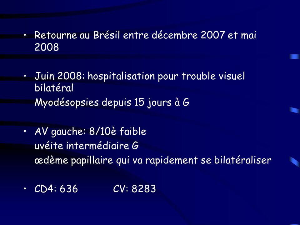 Retourne au Brésil entre décembre 2007 et mai 2008 Juin 2008: hospitalisation pour trouble visuel bilatéral Myodésopsies depuis 15 jours à G AV gauche