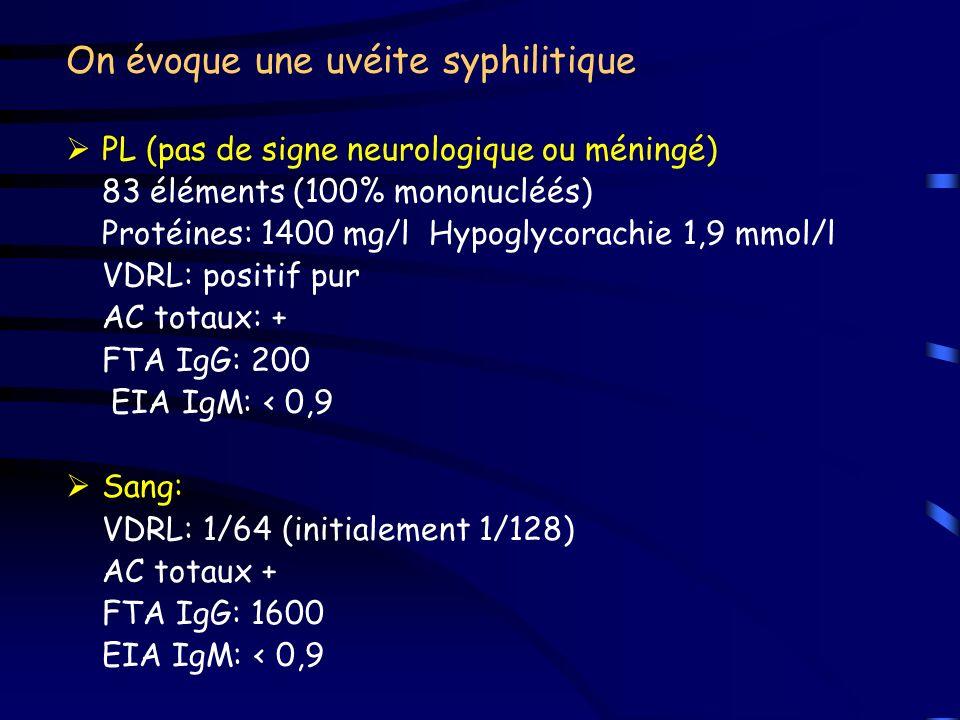 On évoque une uvéite syphilitique PL (pas de signe neurologique ou méningé) 83 éléments (100% mononucléés) Protéines: 1400 mg/l Hypoglycorachie 1,9 mm