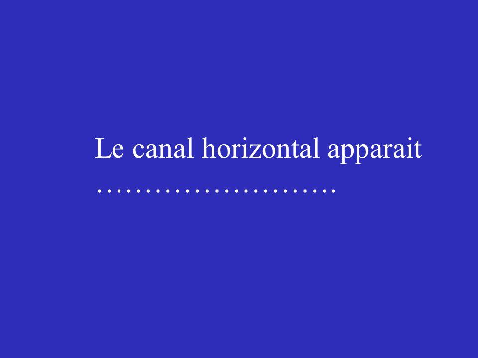 Le canal horizontal apparait …………………….