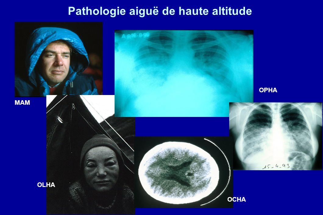 Pathologie aiguë de haute altitude MAM OPHA OCHA OLHA