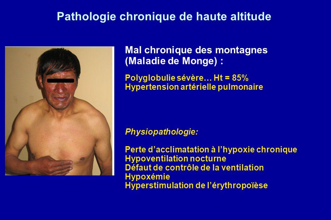 Pathologie chronique de haute altitude Mal chronique des montagnes (Maladie de Monge) : Polyglobulie sévère… Ht = 85% Hypertension artérielle pulmonai