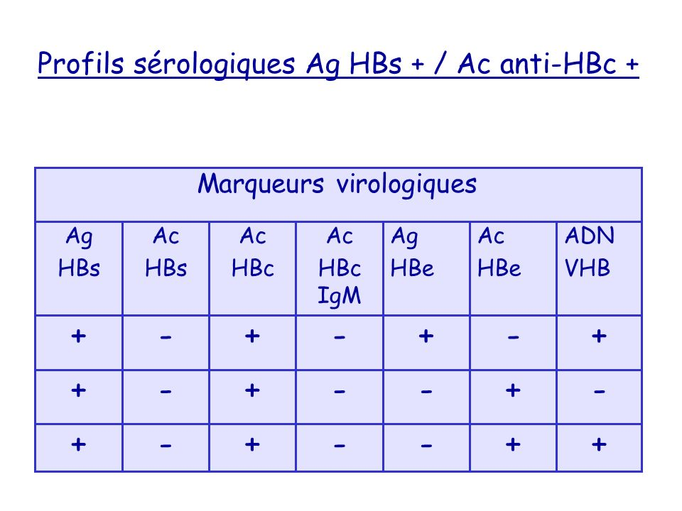 Profils sérologiques Ag HBs + / Ac anti-HBc + ++--+-+ -+--+-+ +-+-+-+ ADN VHB Ac HBe Ag HBe Ac HBc IgM Ac HBc Ac HBs Ag HBs Marqueurs virologiques