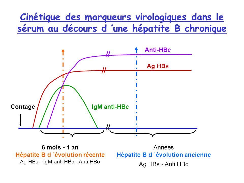 Cinétique des marqueurs virologiques dans le sérum au décours d une hépatite B chronique Anti-HBc Ag HBs IgM anti-HBcContage 6 mois - 1 an Hépatite B