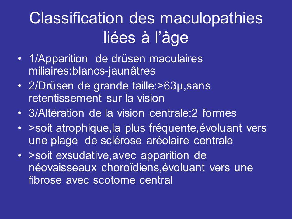 Classification des maculopathies liées à lâge 1/Apparition de drüsen maculaires miliaires:blancs-jaunâtres 2/Drüsen de grande taille:>63µ,sans retenti