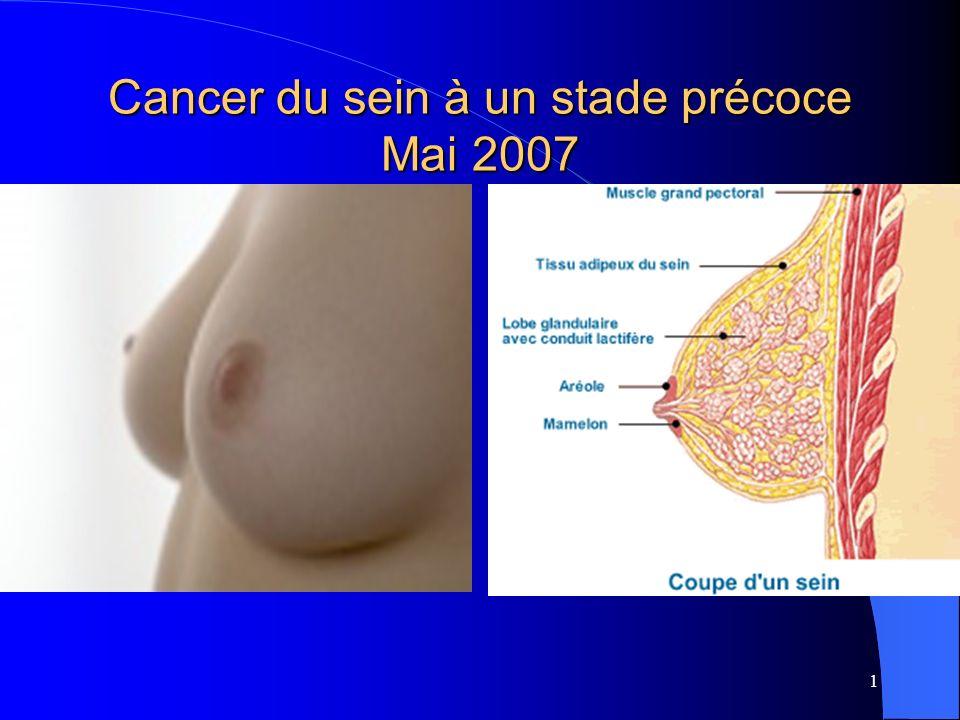 1 Cancer du sein à un stade précoce Mai 2007