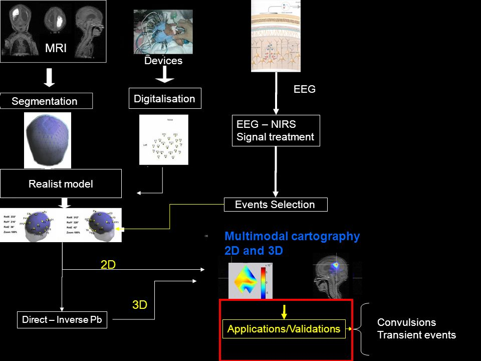 Events Selection Multimodal cartography 2D and 3D Direct – Inverse Pb EEG EEG – NIRS Signal treatment Applications/Validations 2D 3D Convulsions Trans