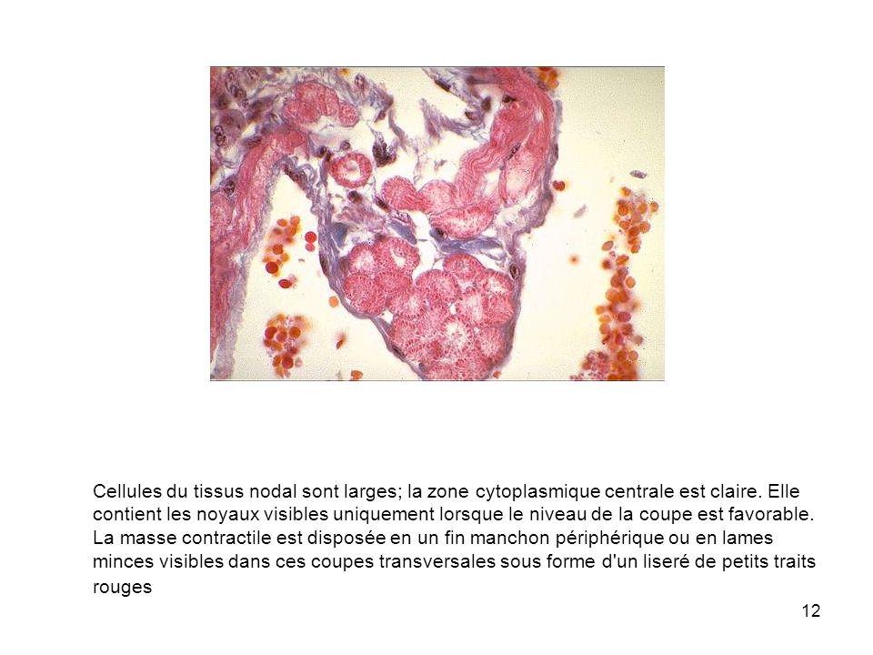 12 Cellules du tissus nodal sont larges; la zone cytoplasmique centrale est claire. Elle contient les noyaux visibles uniquement lorsque le niveau de