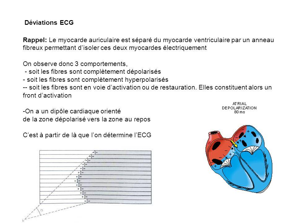 31 Déviations ECG Rappel: Le myocarde auriculaire est séparé du myocarde ventriculaire par un anneau fibreux permettant disoler ces deux myocardes éle