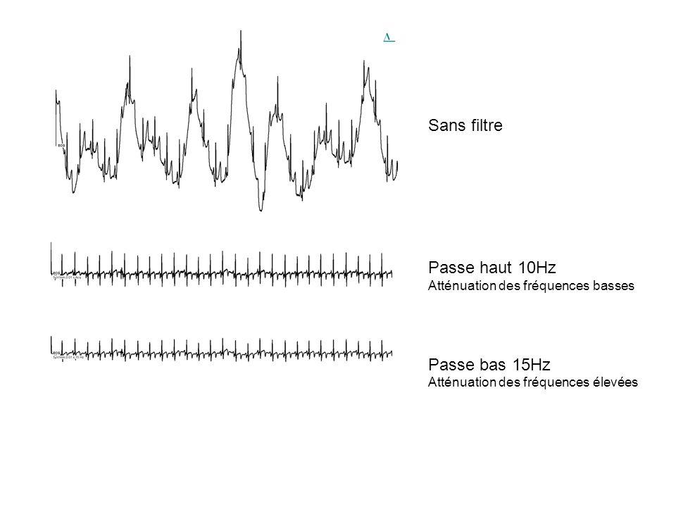 Sans filtre Passe haut 10Hz Atténuation des fréquences basses Passe bas 15Hz Atténuation des fréquences élevées