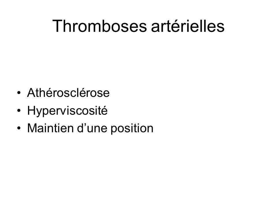 Thromboses artérielles Athérosclérose Hyperviscosité Maintien dune position