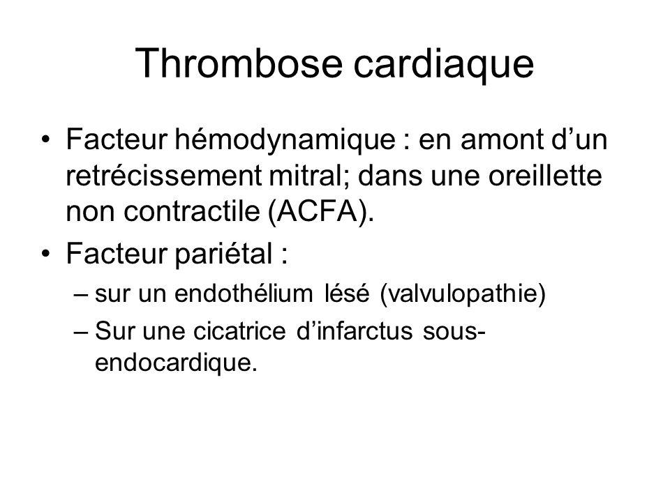 Thrombose cardiaque Facteur hémodynamique : en amont dun retrécissement mitral; dans une oreillette non contractile (ACFA). Facteur pariétal : –sur un