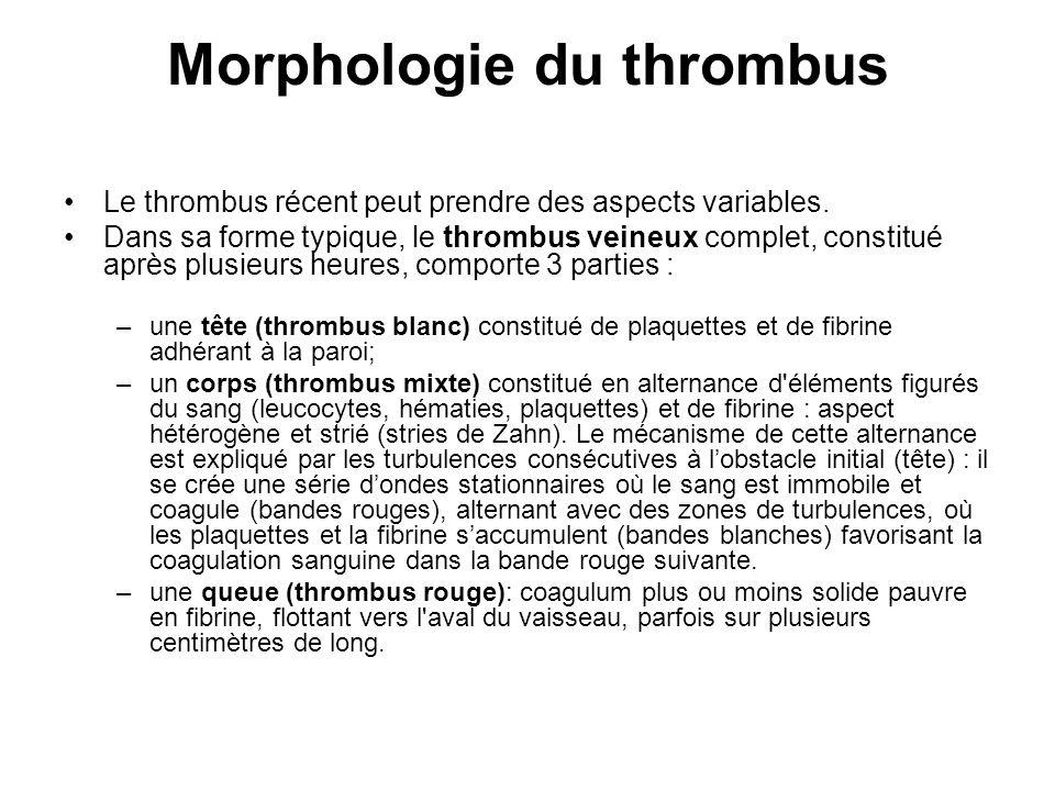 Morphologie du thrombus Le thrombus récent peut prendre des aspects variables. Dans sa forme typique, le thrombus veineux complet, constitué après plu