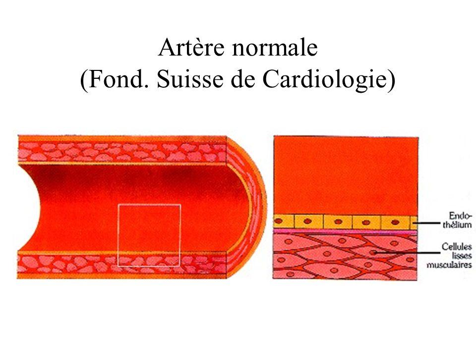 Artère normale (Fond. Suisse de Cardiologie)
