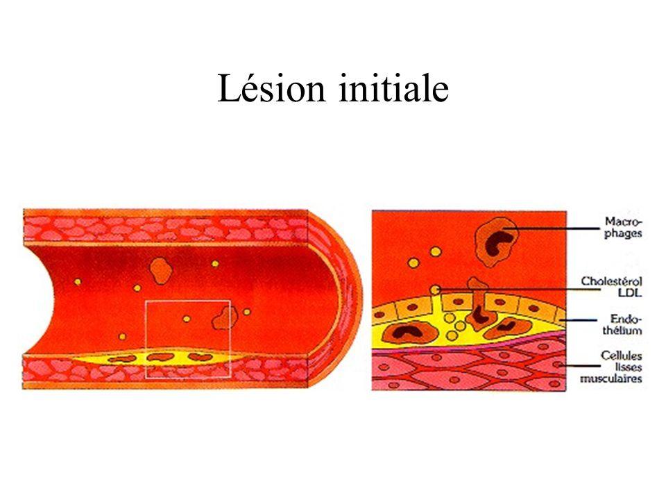 Lésion initiale