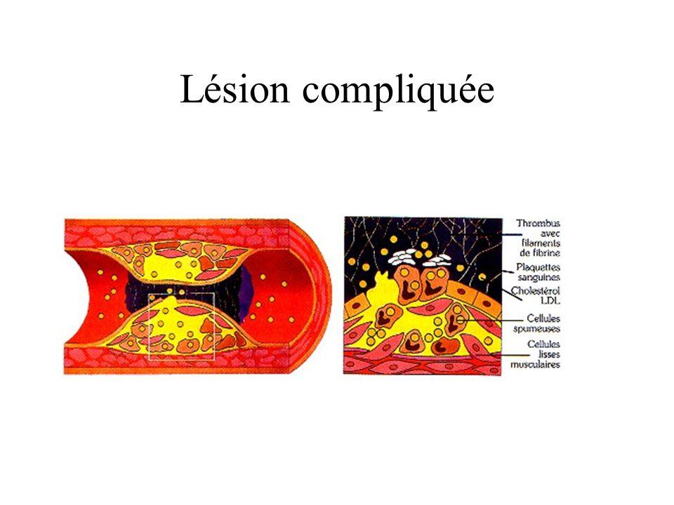 Lésion compliquée