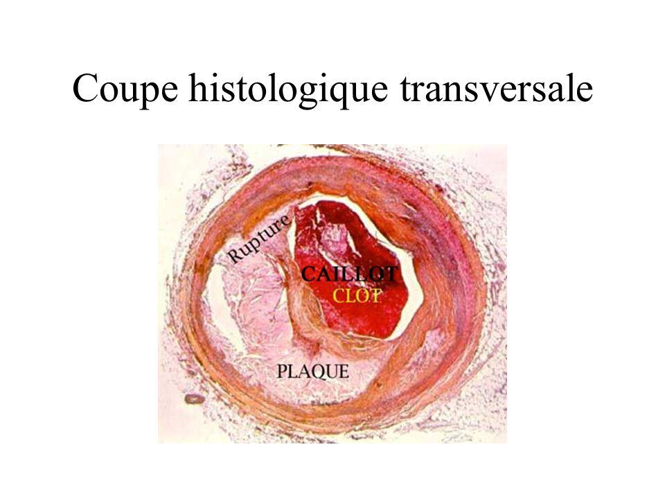 Coupe histologique transversale