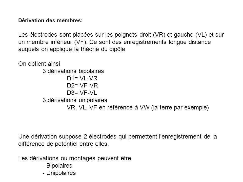 Dérivation des membres: Les électrodes sont placées sur les poignets droit (VR) et gauche (VL) et sur un membre inférieur (VF). Ce sont des enregistre