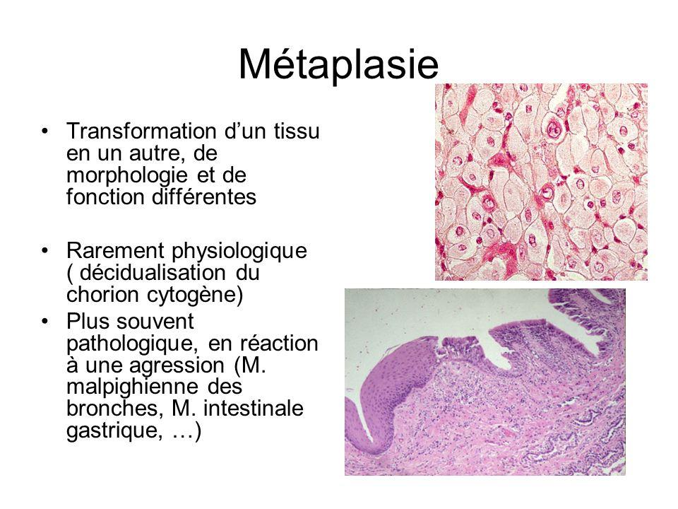 Métaplasie Transformation dun tissu en un autre, de morphologie et de fonction différentes Rarement physiologique ( décidualisation du chorion cytogèn