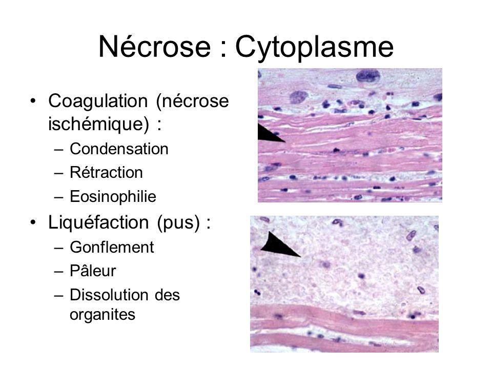 Nécrose : Cytoplasme Coagulation (nécrose ischémique) : –Condensation –Rétraction –Eosinophilie Liquéfaction (pus) : –Gonflement –Pâleur –Dissolution