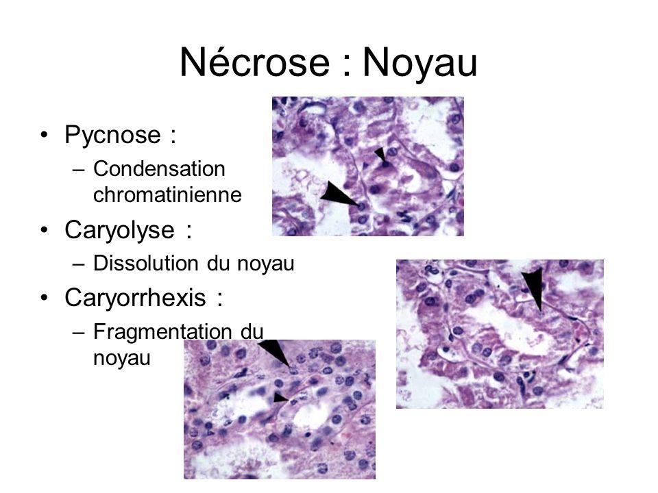 Nécrose : Noyau Pycnose : –Condensation chromatinienne Caryolyse : –Dissolution du noyau Caryorrhexis : –Fragmentation du noyau
