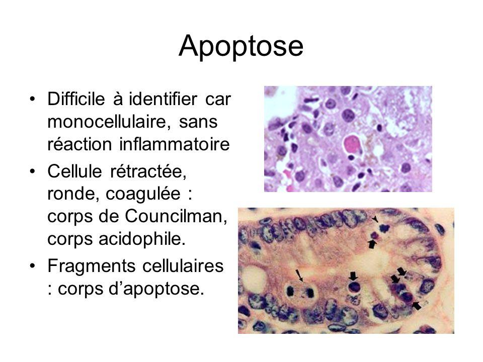 Apoptose Difficile à identifier car monocellulaire, sans réaction inflammatoire Cellule rétractée, ronde, coagulée : corps de Councilman, corps acidop