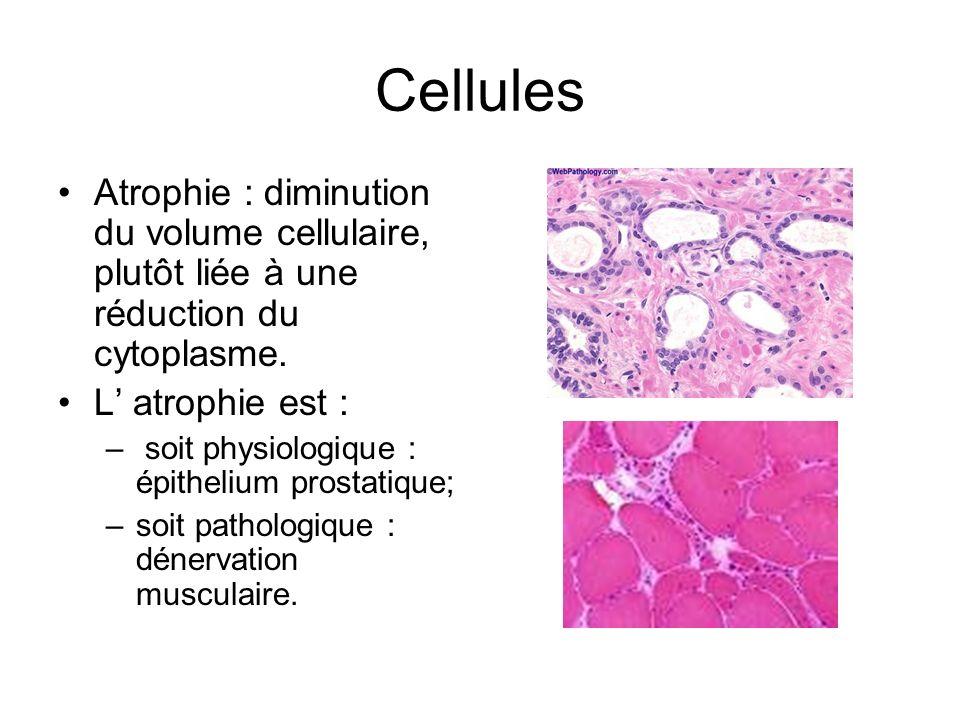 Cellules Atrophie : diminution du volume cellulaire, plutôt liée à une réduction du cytoplasme. L atrophie est : – soit physiologique : épithelium pro