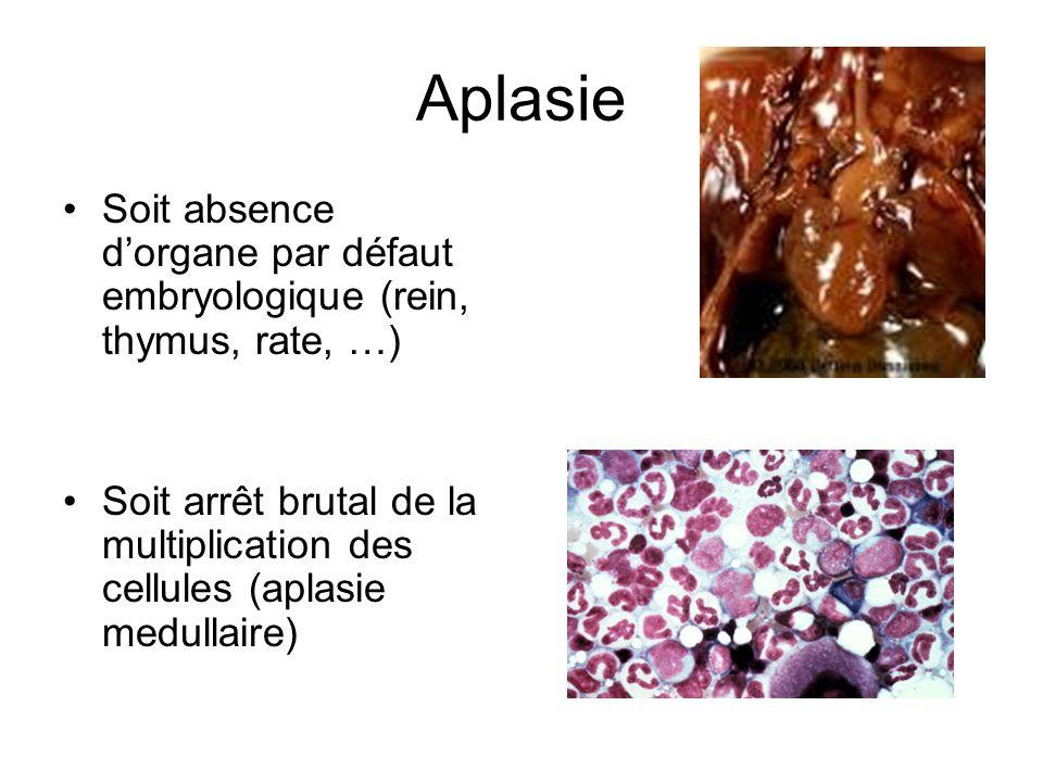 Aplasie Soit absence dorgane par défaut embryologique (rein, thymus, rate, …) Soit arrêt brutal de la multiplication des cellules (aplasie medullaire)
