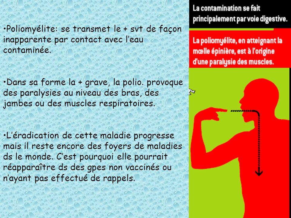 Poliomyélite: se transmet le + svt de façon inapparente par contact avec leau contaminée. Dans sa forme la + grave, la polio. provoque des paralysies