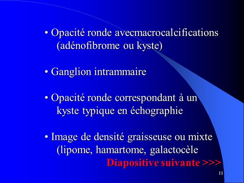 11 Opacité ronde avecmacrocalcifications (adénofibrome ou kyste) Opacité ronde avecmacrocalcifications (adénofibrome ou kyste) Ganglion intrammaire Ga