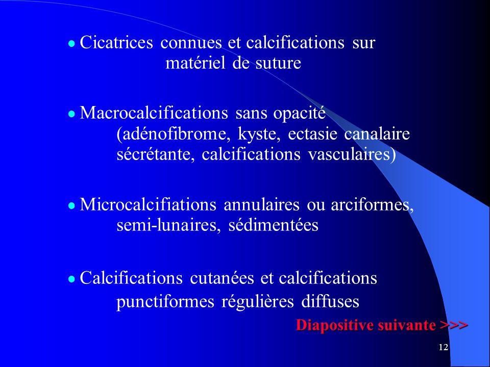 12 Cicatrices connues et calcifications sur matériel de suture Macrocalcifications sans opacité (adénofibrome, kyste, ectasie canalaire sécrétante, ca