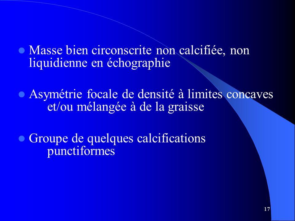 17 Masse bien circonscrite non calcifiée, non liquidienne en échographie Asymétrie focale de densité à limites concaves et/ou mélangée à de la graisse