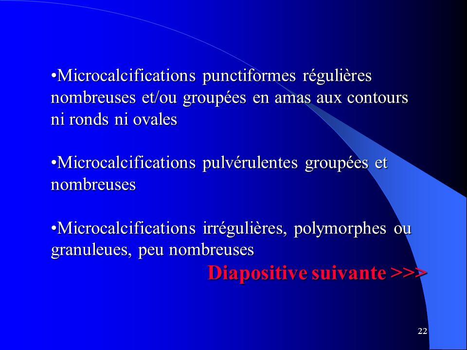 22 Microcalcifications punctiformes régulières nombreuses et/ou groupées en amas aux contours ni ronds ni ovalesMicrocalcifications punctiformes régul