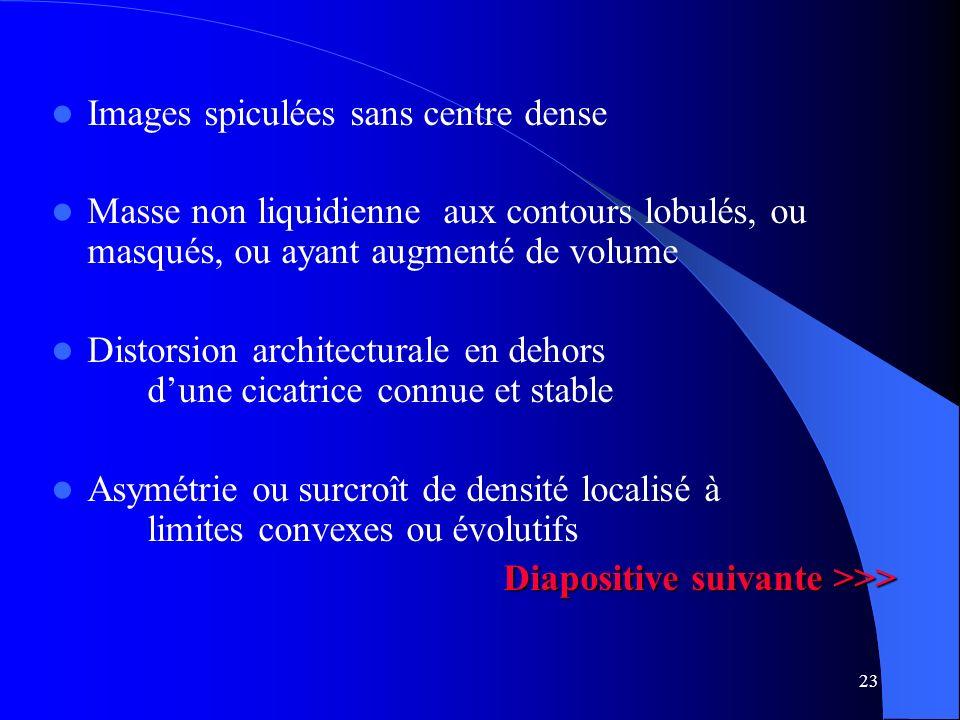 23 Images spiculées sans centre dense Masse non liquidienne aux contours lobulés, ou masqués, ou ayant augmenté de volume Distorsion architecturale en
