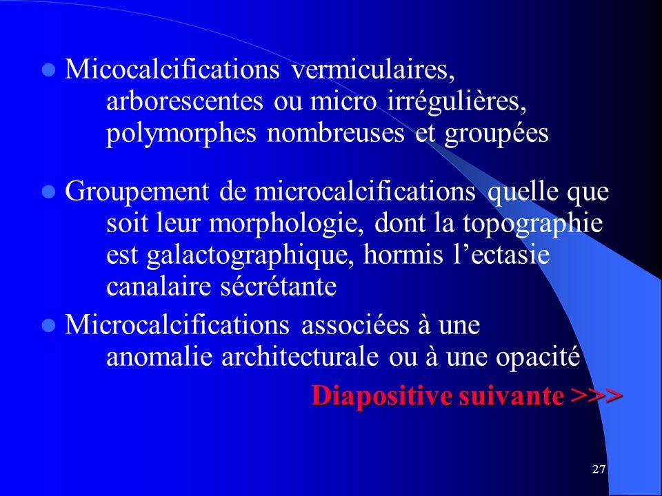 27 Micocalcifications vermiculaires, arborescentes ou micro irrégulières, polymorphes nombreuses et groupées Groupement de microcalcifications quelle