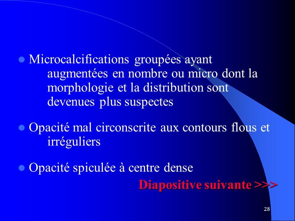 28 Microcalcifications groupées ayant augmentées en nombre ou micro dont la morphologie et la distribution sont devenues plus suspectes Opacité mal ci
