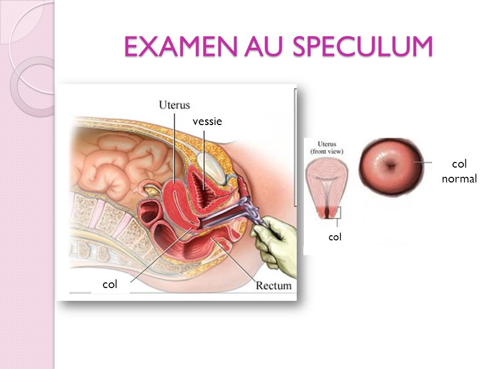 EXAMEN AU SPECULUM vessie col normal