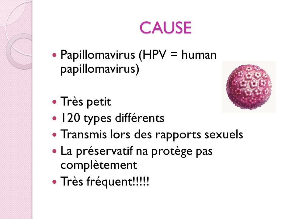 CAUSE Papillomavirus (HPV = human papillomavirus) Très petit 120 types différents Transmis lors des rapports sexuels La préservatif na protège pas com