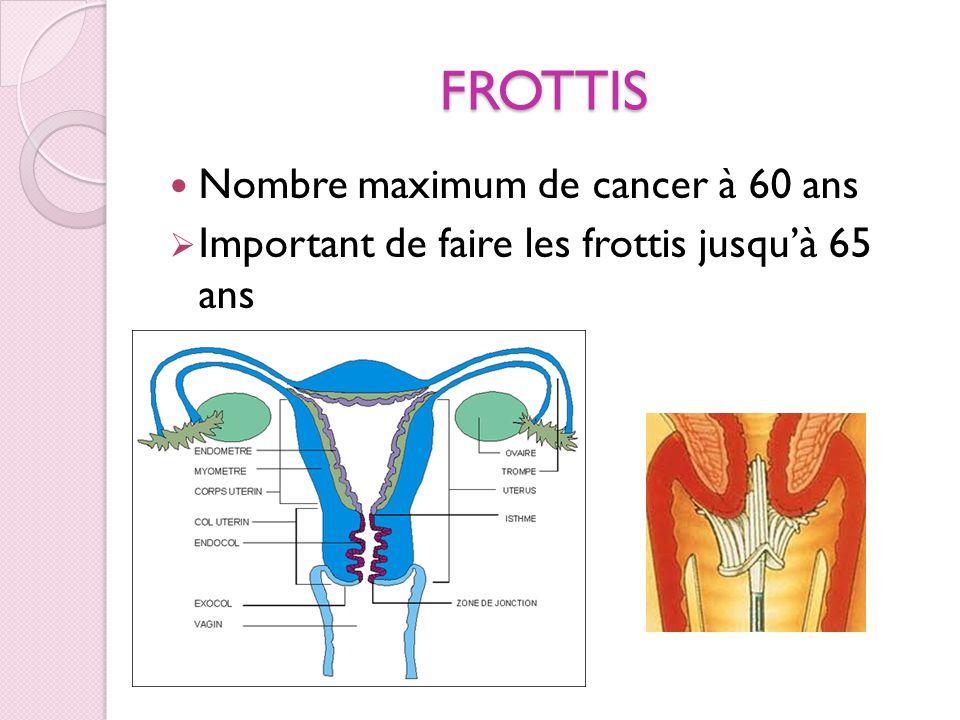 FROTTIS Nombre maximum de cancer à 60 ans Important de faire les frottis jusquà 65 ans