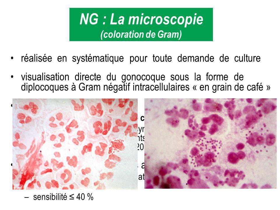 réalisée en systématique pour toute demande de culture visualisation directe du gonocoque sous la forme de diplocoques à Gram négatif intracellulaires
