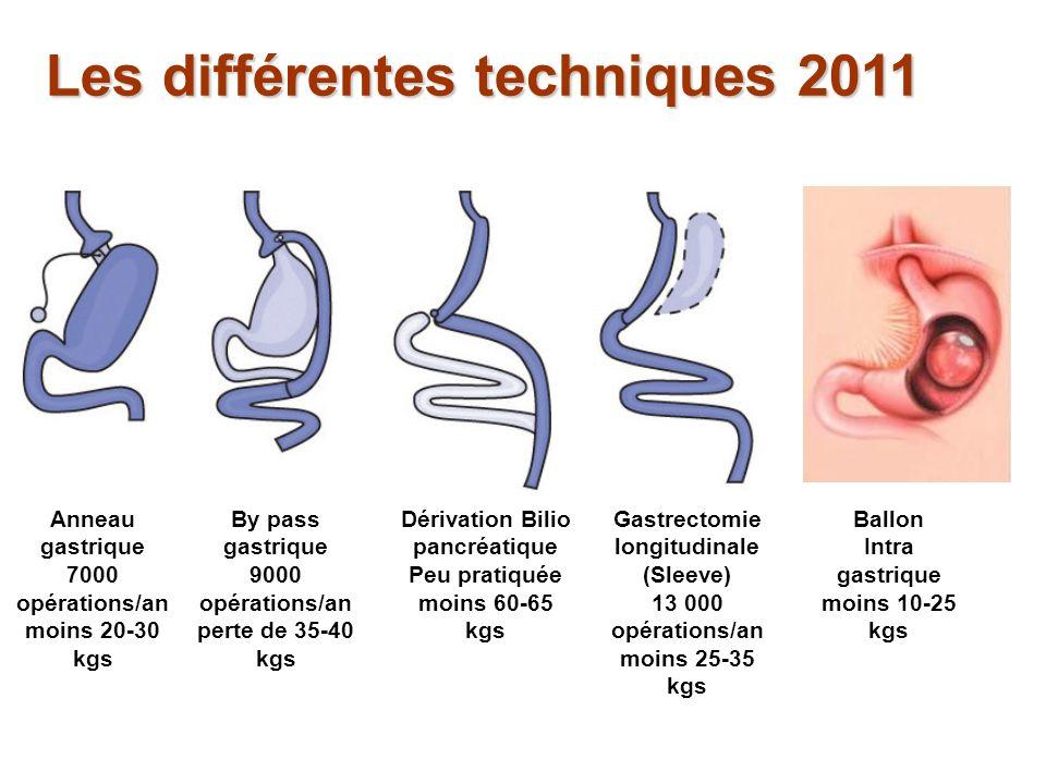 Perte de poids à 20 ans de la chirurgie bariatrique Sjostrom, L et.